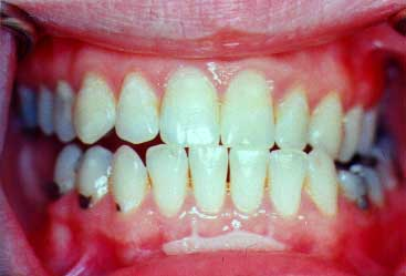 after periodontal treatment